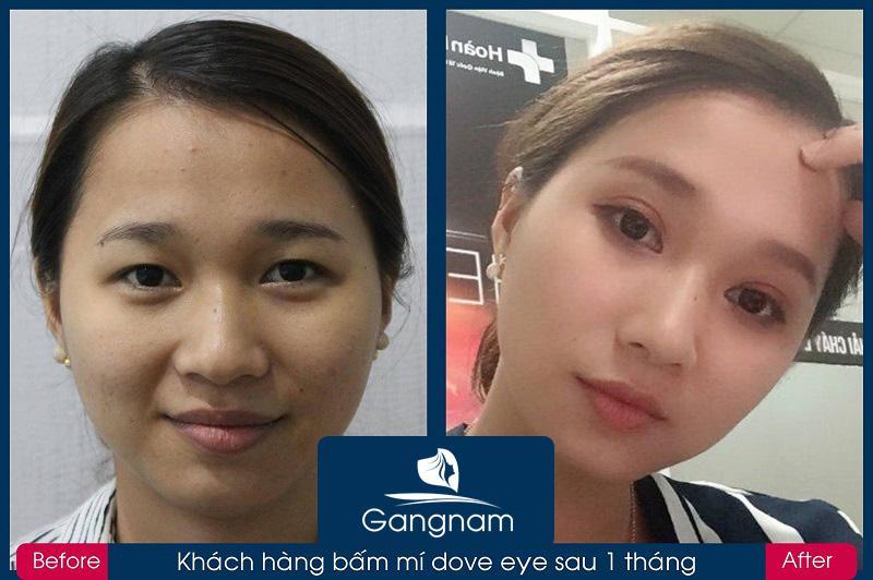 Bấm mí Dove EHình ảnh khách hàng trước và sau khi bấm mí Dove Eyesyes