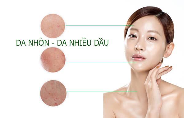 Cách chăm sóc da nhờn hiệu quả