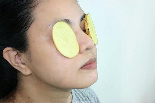 Khoai tây đắp mắt