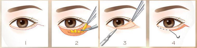 Cắt da thừa mí dưới và lấy mỡ mắt
