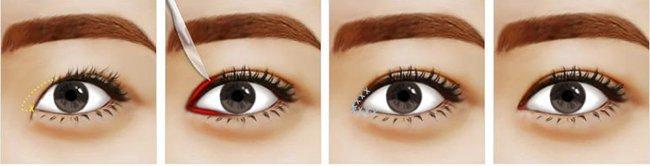 Phẫu thuật mắt to