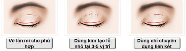 Mắt một mí là gì