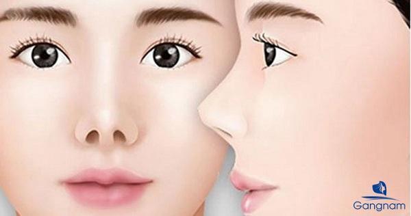 Mũi hếch là gì? Cách khắc phục mũi hếch