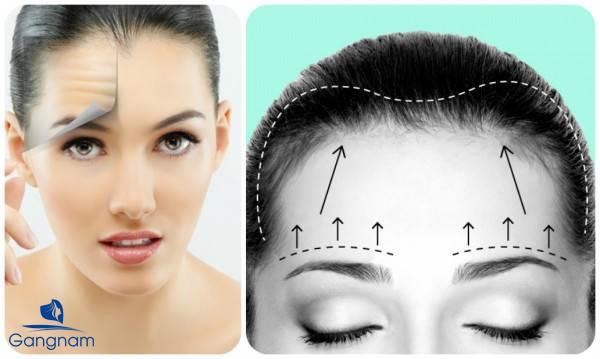 Tiêm botox xóa nhăn không phẫu thuật
