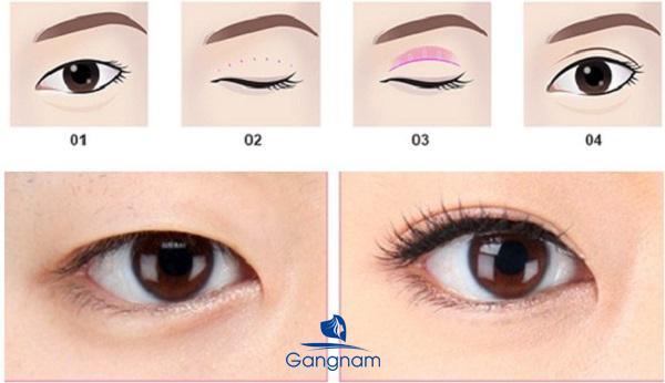 Mắt bồ câu là gì?