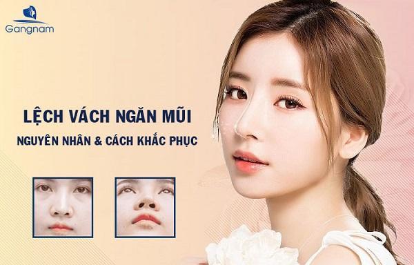 Nguyên nhân và cách khắc phục lệch vách ngăn mũi