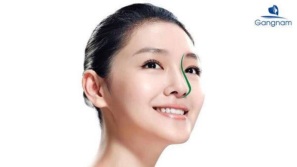 Nâng mũi bao lâu thì đẹp tự nhiên?