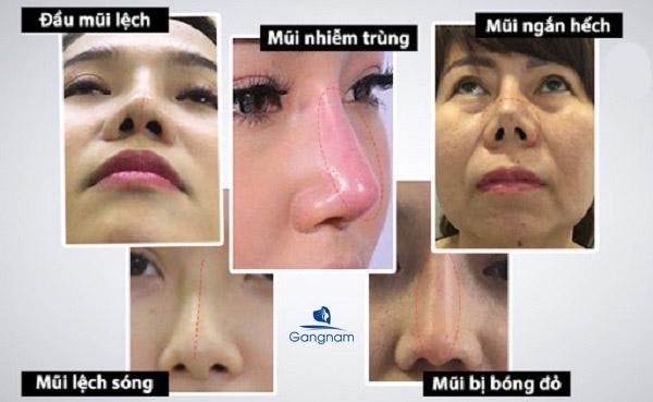 Nâng mũi hỏng bao lâu có thể sửa lại được?
