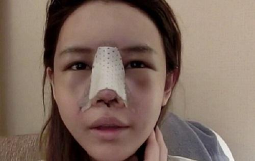 Nâng mũi có bị kéo mắt không?