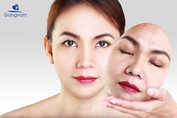 Căng da mặt bằng chỉ collagen giữ được bao lâu?