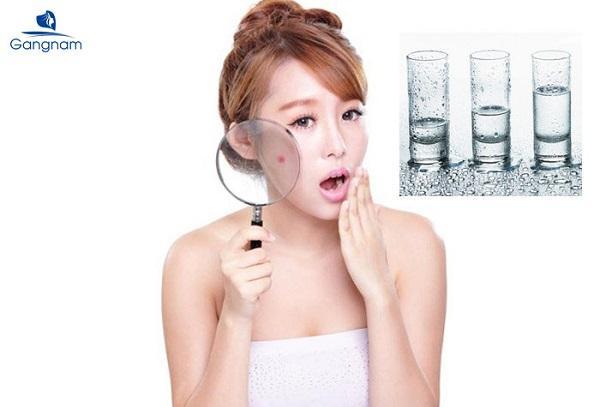 Uống nước gì để trị mụn từ bên trong?